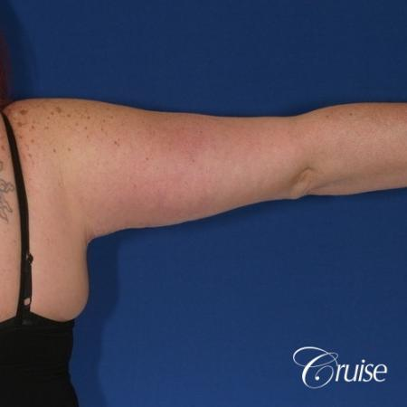 best recovery and photos of arm lift orange county -  After Image 2