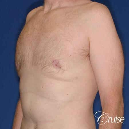 best donut lift with gynecomastia surgery -  After Image 2