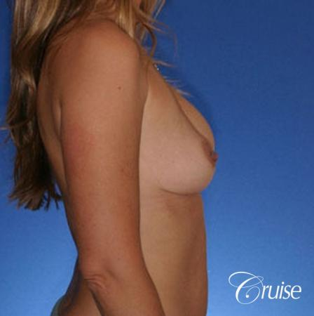 best revision on a saline breast implant rupture - Before Image 5