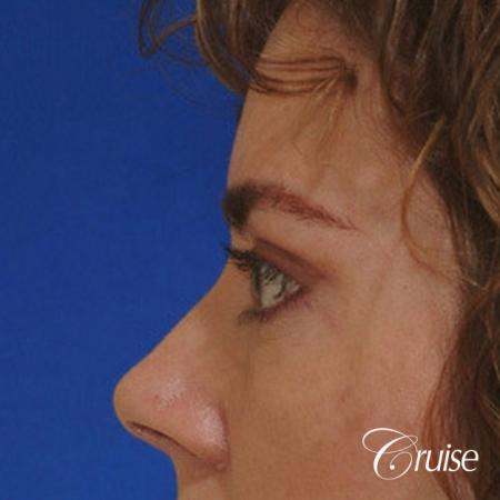 blepharoplasty specialist -  After Image 2