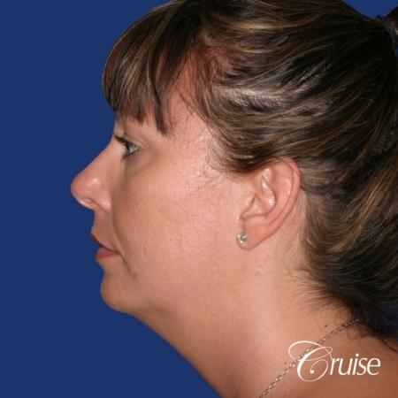 best before and after of chin augmentation medium implant - Before Image 2