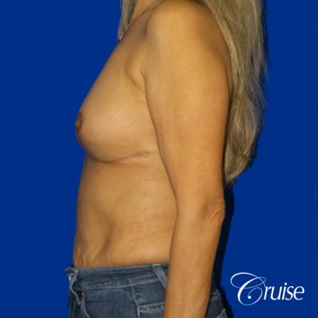 Best Breast reduction results and recovery -  After Image 2