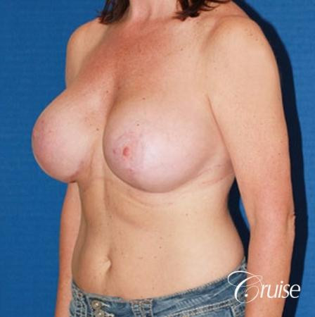 best breast lift anchor with high profile saline implants -  After Image 2