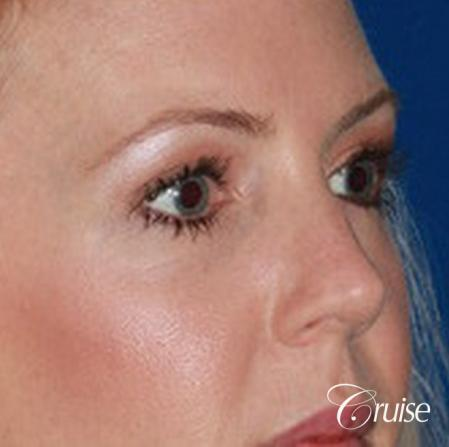 best upper eye lid results -  After Image 2