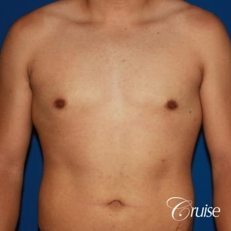 puffy nipple on 26 year old with gynecomastia -  After Image 1