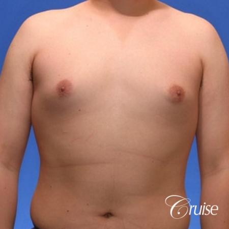 young male with mild gynecomastia surgery for puffy nipple - Before 1