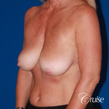 best breast lift with implants - Before and After Image 2