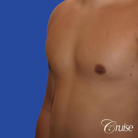 mild gynecomastia with puffy nipple and areola incision -  After Image 2