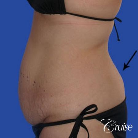 best liposuction tummy tuck - Before Image 2