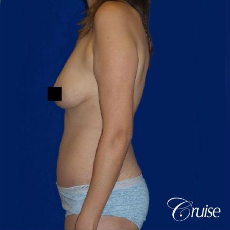Best tummy tuck incisions orange county - After Image 3