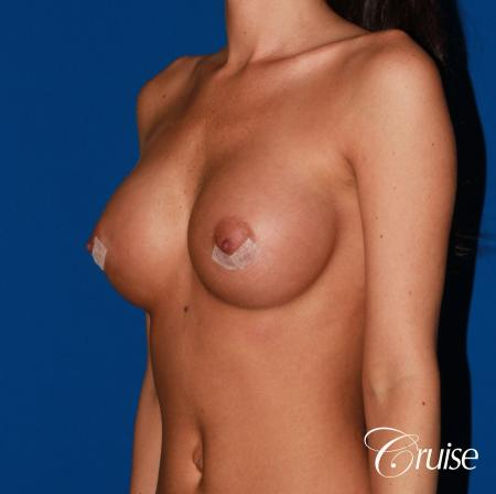 Breast Augmentation - After Image 3