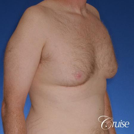 best donut lift with gynecomastia surgery - Before and After Image 4