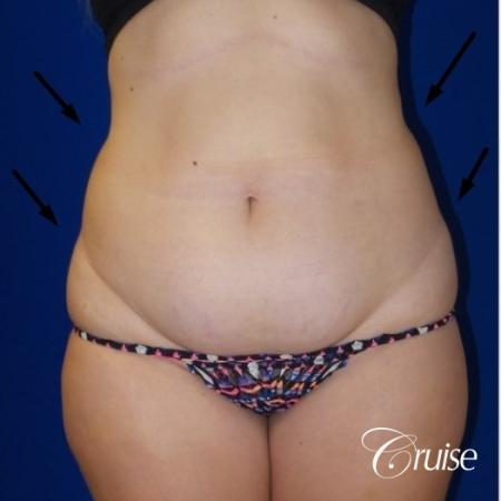 Liposuction Flanks & Abdomen - Before Image 3