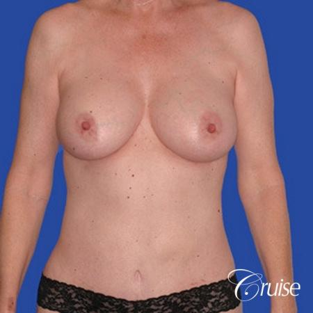 low mini tummy tuck with D cup  breast augmentation - After Image