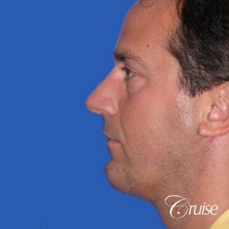 terino square jaw implant after best chin augmentation -  After Image 2