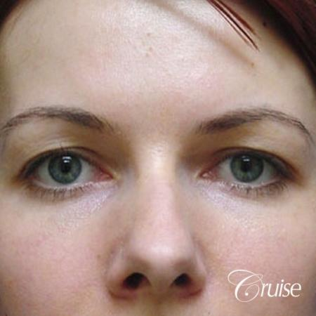 best before and after pictures of upper eyelid surgery - Before Image