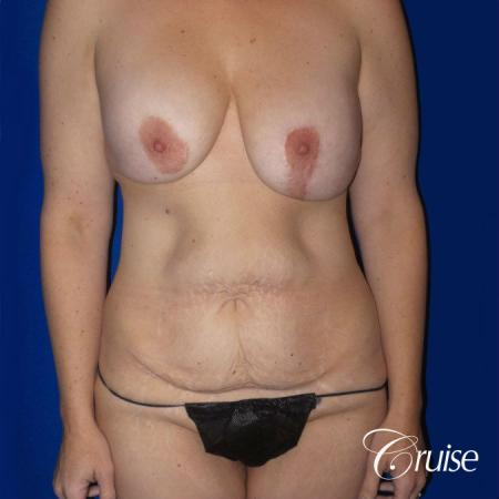 Circumferential Tummy Tuck, Breast Lift Anchor W/ Silicone - Before Image 1