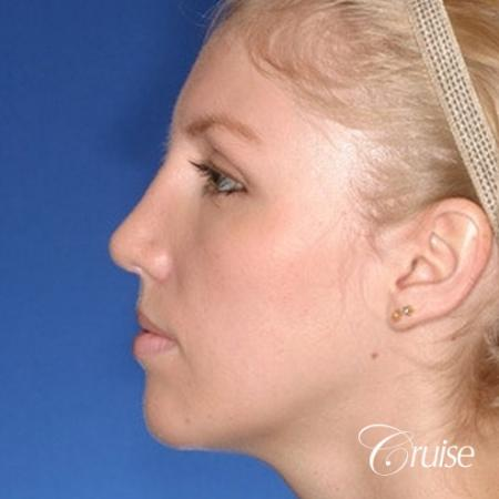young female with large anatomic chin implant -  After Image 2