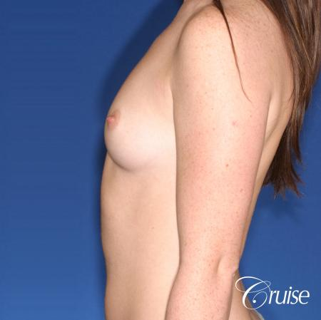 Breast Augmentation: Patient 44 - Before Image 2