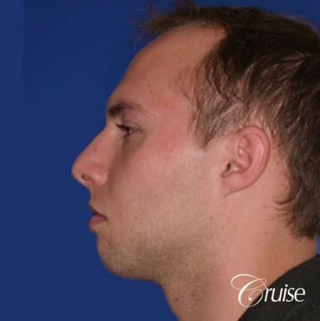 best chin implant on male with medium square jaw - Before Image 2