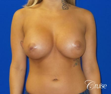 Breast Augmentation Irvine CA - After Image