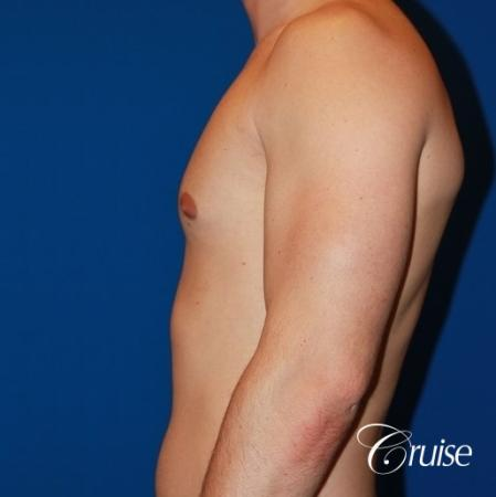 32 yo with Gynecomatia and Puffy Nipple - Before Image 2
