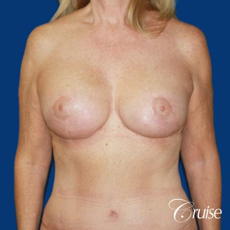 62 yr old woman with breast lift anchor and silicone implants -  After 1