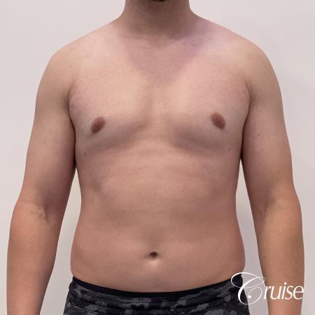Gynecomastia: Patient 123 - After 1