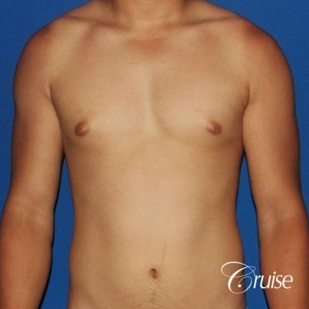 young athletic adult with puffy nipple - Before Image 1
