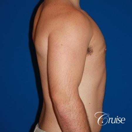 athletic adult with puffy nipple -  After Image 4
