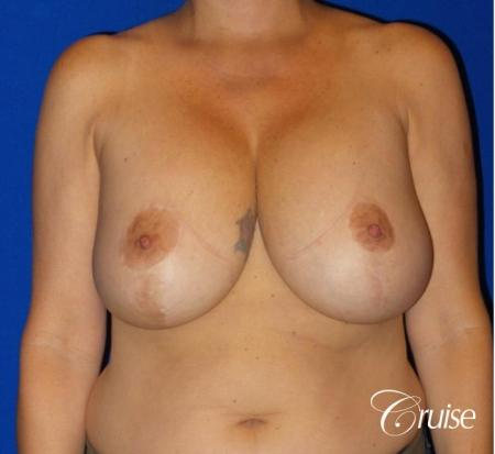 Breast Lift And Augmentation: Patient 6 - Before Image 1