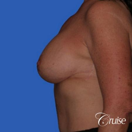 best breast lift anchor with saline augmentation -  After Image 2