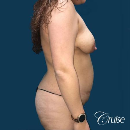 Extended Tummy Tuck, BBL, Breast Lift Anchor With Silicone - Before Image 2