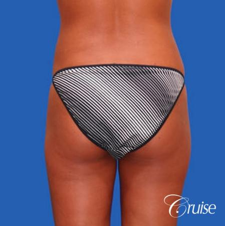 best liposuction abdomen and love handles -  After Image 3