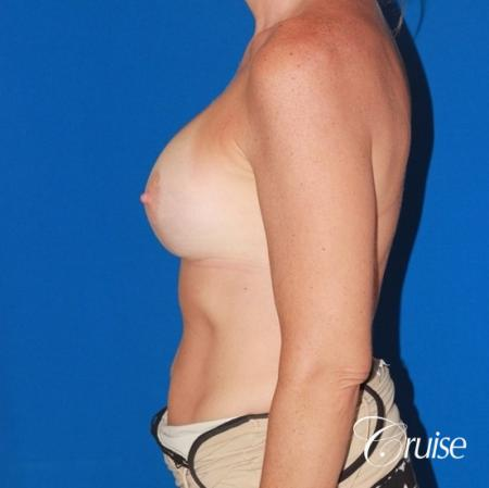 moderate profile saline breast lift anchor before and after pictures -  After Image 2