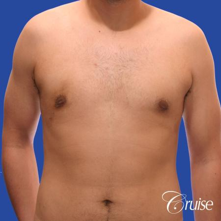 mild gynecomastia standard PA areola incision -  After Image 1