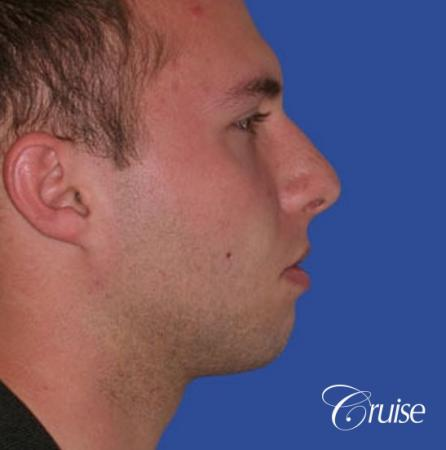 best chin implant on male with medium square jaw - Before Image 3