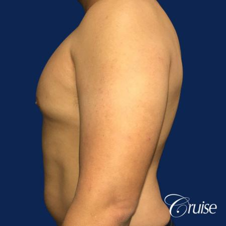 Mild Gynecomastia - Standard Areola Incision - Before and After Image 3