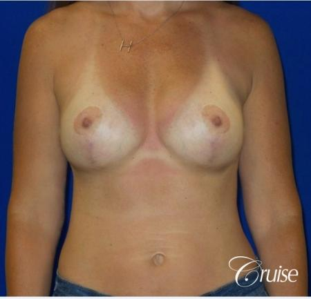 Breast Revision: Patient 2 - After 1