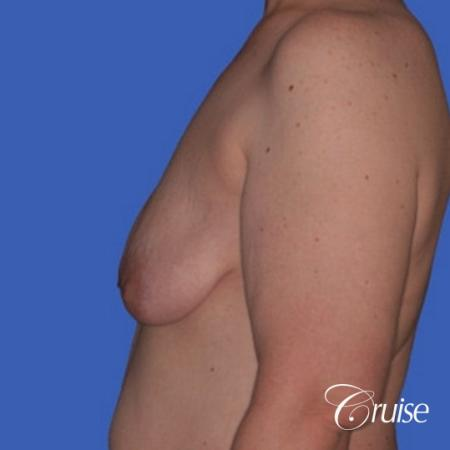 best photos of breast lift anchor on 39 yr old - Before and After Image 2