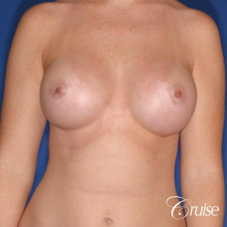 Breast Augmentation: Patient 44 - After Image 1