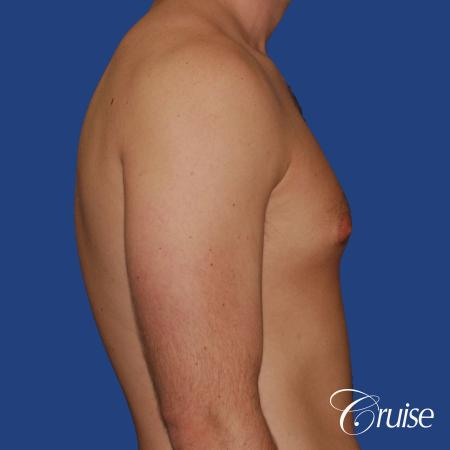 young adult with puffy nipple gets the best results with top gynecomastia surgeon - Before Image 2