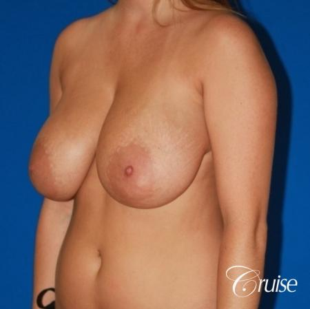 best saline breast reduction on large breast - Before Image 3