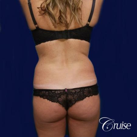 Brazilian Butt Lift Dr. Cruise - Before Image