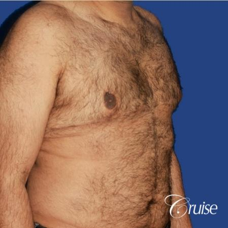 40 year old with severe gynecomastia results - After Image 2