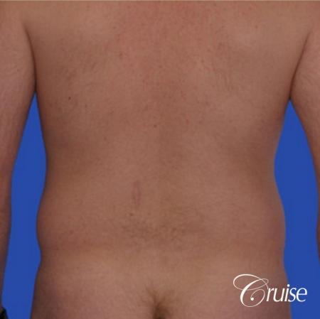 male muffin top liposuction pictures - Before Image 1