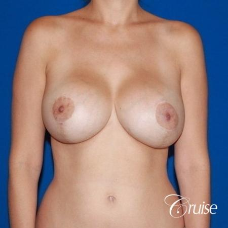 best results for breast lift anchor with saline implanta -  After Image 1