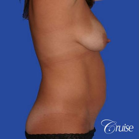 mommy makeover with best breast lift anchor with saline implants - Before Image 3