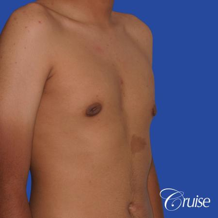 gynecomastia patient gets nipple reduction for best results -  After Image 5