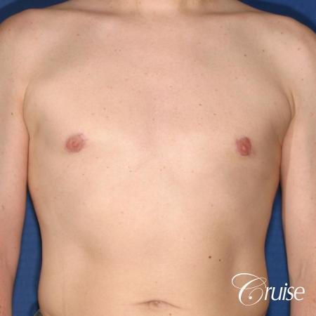 moderate gynecomastia on adult with donut lift scar -  After Image 1